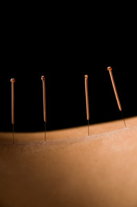 TCM & Acupuncture Treatments